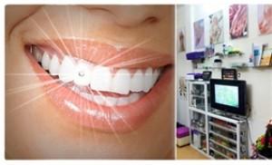 Nụ cười lấp lánh, rạng rỡ đón nắng thu với dịch vụ gắn đá lên răng