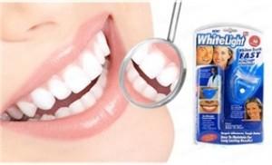 Tự tin với hàm răng trắng sáng cùng dụng cụ làm trắng White-Light