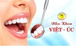Dịch vụ tẩy trắng răng bằng đèn Plasma tại Nha khoa Việt Úc