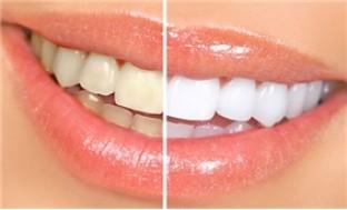 Dịch vụ lấy cao răng, đánh bóng răng và điều trị viêm lợi đặc hiệu