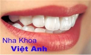 Dịch vụ lấy cao răng và đánh bóng răng tại Nha khoa VIỆT ANH