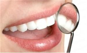 Chắc khỏe răng xinh với các dịch vụ chăm sóc răng-Nha khoa Hợp Nhất