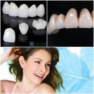 Bọc răng, làm răng sứ Nhật Bản Nha khoa Việt Nhật