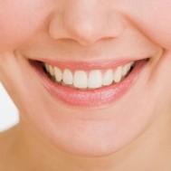 Tẩy trắng răng trọn gói