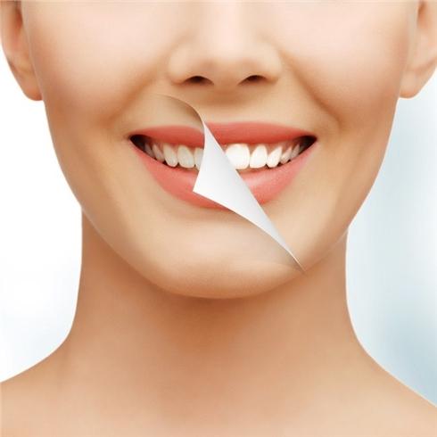Tẩy trắng răng công nghệ Bleach Right tại Nha khoa Trí Huy
