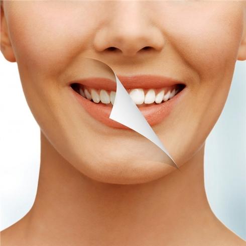 Tẩy trắng răng công nghệ Bleach Bright tại Nha khoa Javi