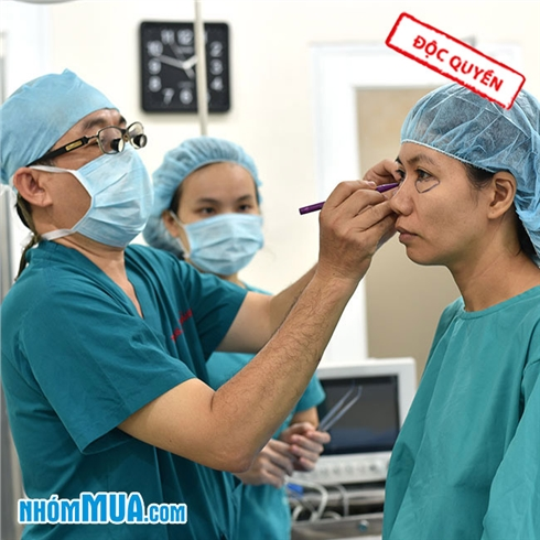 Bấm mí mắt Hàn Quốc - Tiến sĩ Bác sĩ Nguyễn Việt Thành 3*