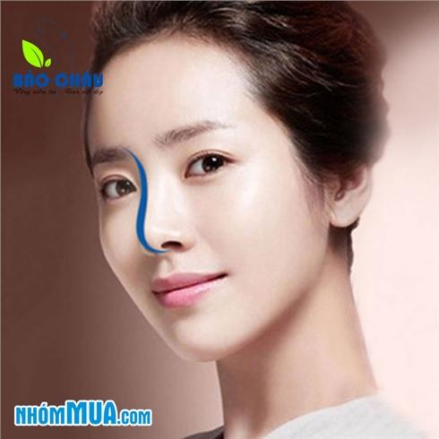 Nâng mũi sụn/bấm mí Hàn Quốc-TT phẫu thuật thẩm mỹ Bảo Châu3*