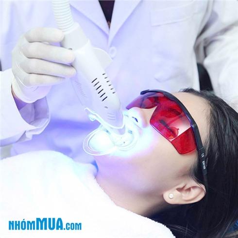 Tẩy trắng răng Bleach Bright không ê buốt tại NK Phương Tây