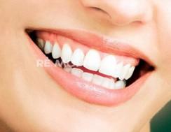 Nhân dịp khai trương tri ân khách hàng qua dịch vụ trông răng sứ TITAN tại Nha khoa Nhật Mỹ
