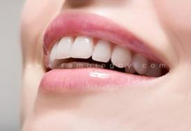 Trồng răng sứ TITAN tại Nha Khoa Nhật Mỹ