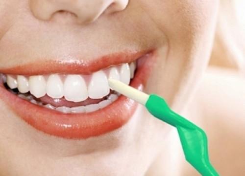 Dụng cụ cạo vôi răng