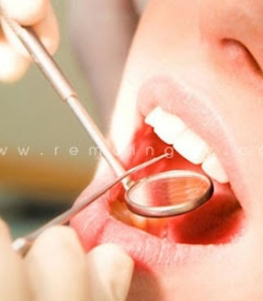 Trám răng thẩm mỹ hoặc cạo vô đánh bóng răng tại nha khoa Hợp Nhất