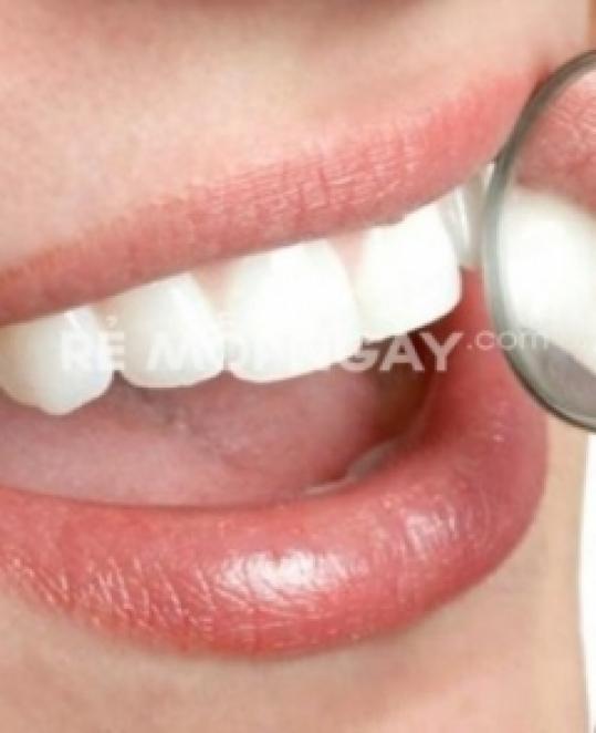 Trám răng hoặc cạo vôi đánh bóng răng tại nha khoa Thiên Sứ