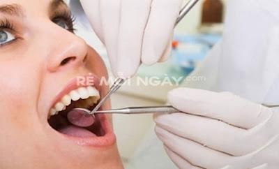 Dịch vụ cạo vôi đánh bóng răng tại nha khoa Thiên Phước