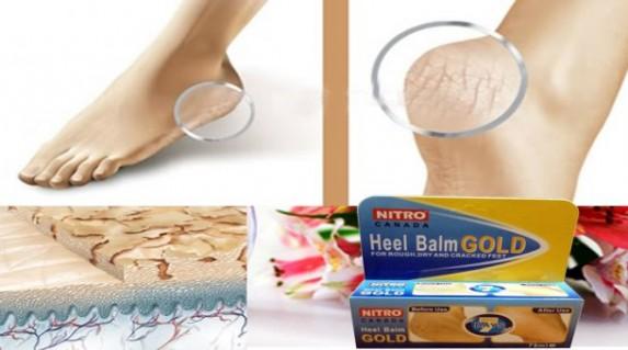 Kem phòng và trị nứt gót chân nitro 75ml giá chỉ 79.000 vnđ giúp khôi phục sự mềm mại của da, làm gót chân bạn trở nên hồng hào và mềm mịn.Giá cực rẻ chỉ có tại Retunggiay.vn !