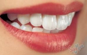 Tẩy trắng răng tại nha khoa Hợp Nhất giá chỉ có 450.000đ, tẩy trắng răng công nghệ Plasma, mang đến cho bạn nụ cười duyên dáng.