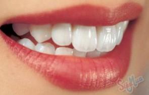 Trồng răng sứ Titan tại Nha Khoa Hợp Nhất giá chỉ có 750.000đ, sở hữu hàm răng trắng sáng hoàn hảo cho nụ cười thêm rạng rỡ.